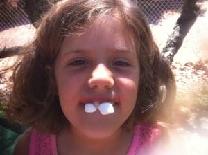 natalie teeth